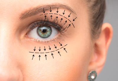 What is Blepharoplasty?