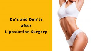 do's and don'ts after liposuction surgery - amwaj polyclinic
