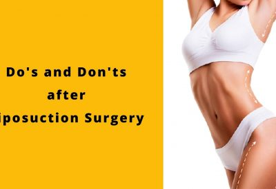 Follow these 11 Do's And Don'ts After Your Liposuction Surgery To Maintain The Perfect Contouring Results